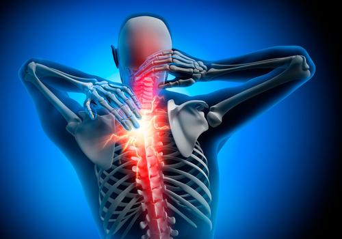 HWS-Syndrom | Heilpraxis Hara